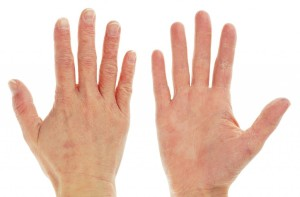 Cold, dry air and artificial heat will devastate your hands